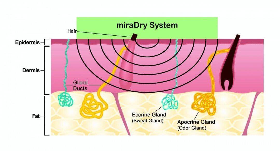 How Miradry works