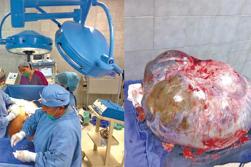 tumor 60 kilos mujer los cabos