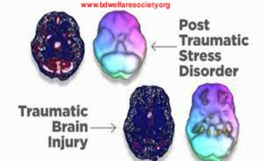 Discussion About - Post- Alarming Accent Ataxia or, Post-Traumatic Stress Disorder (PTSD)-0024.........