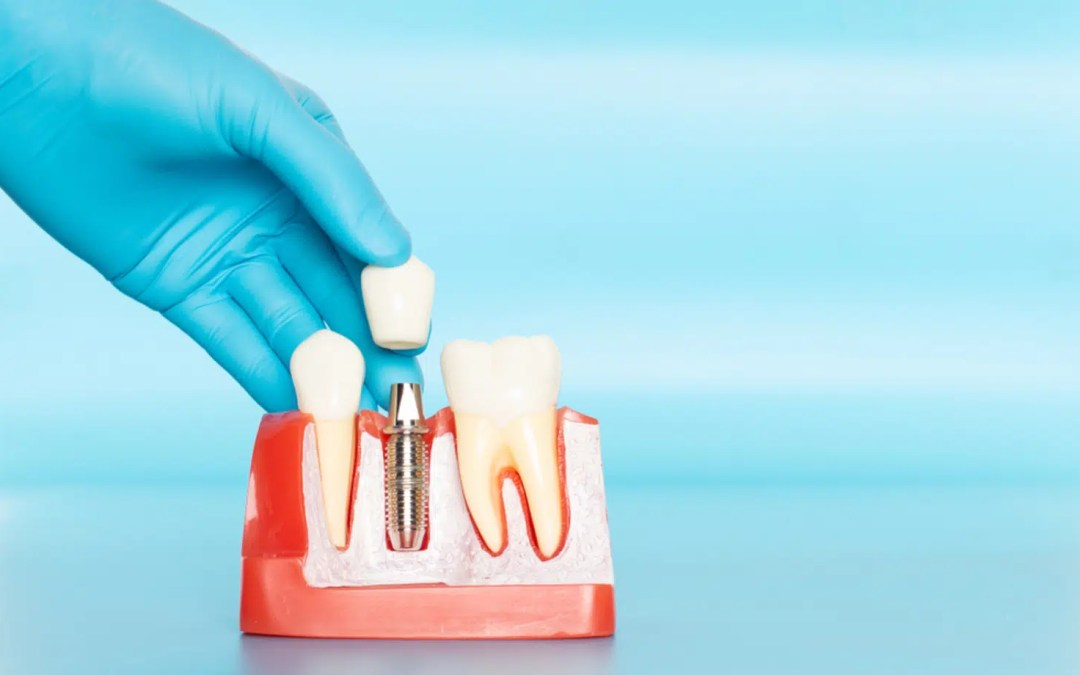 Options for replacing a missing tooth
