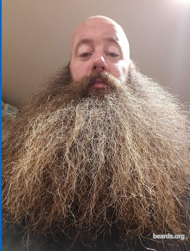 Gerry, 2018/01/14 beard update photo 1