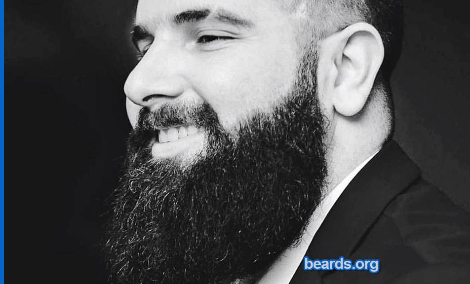 Remon: today's beard, 2016/12/09