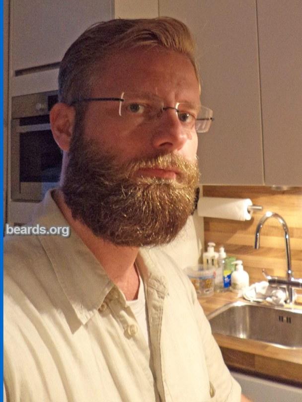 William, beard photo 3