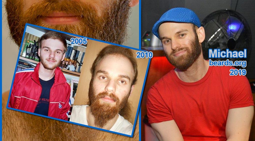 Michael, teenage beard grower, featured beard image