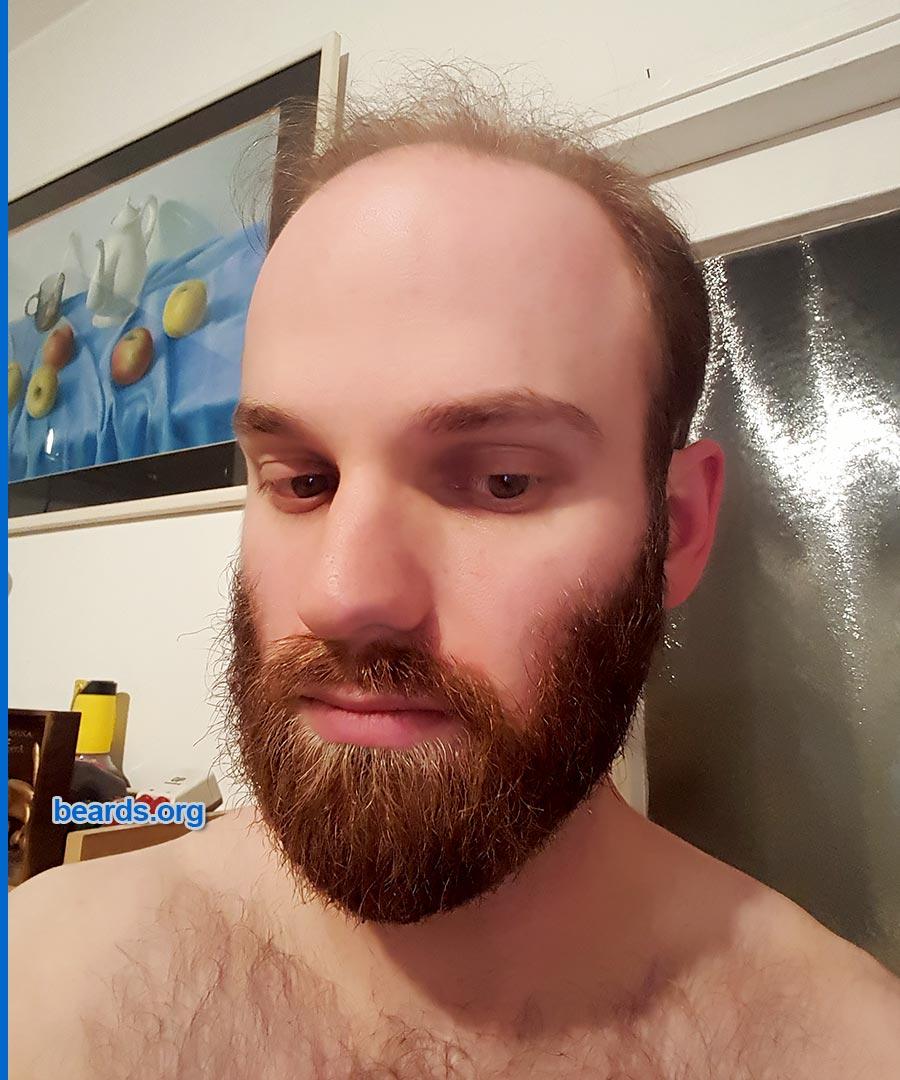 Michael's beard on 2019/01/31