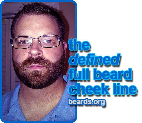 full beard with defined cheek line