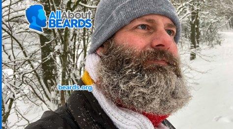William's biggest beard yet, featured image