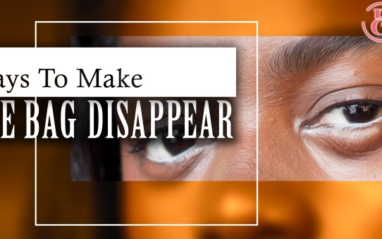 13 Ways to Make Those Eye Bags Disappear