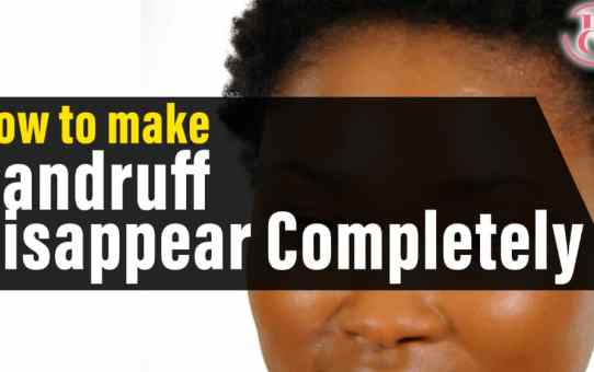 How to Make Dandruff Disappear Completely