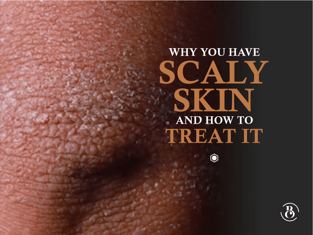Why You Have Scaly Skin And How To Treat It Beaucrest