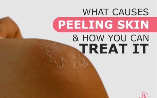 What Causes Peeling Skin and How You Can Treat It