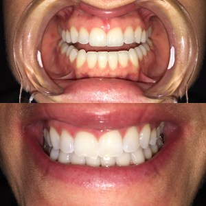 Before and After Teeth Whiteing