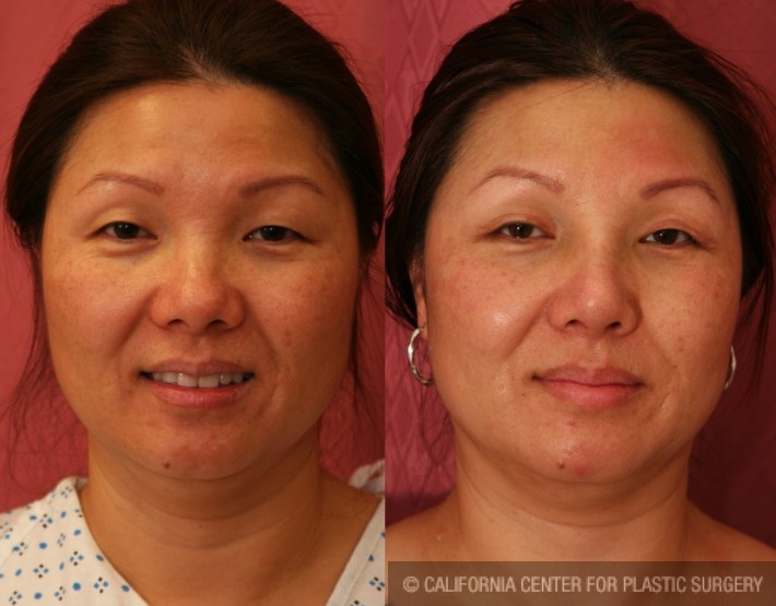 patient #6375 asian rhinoplasty before and after photos los angeles