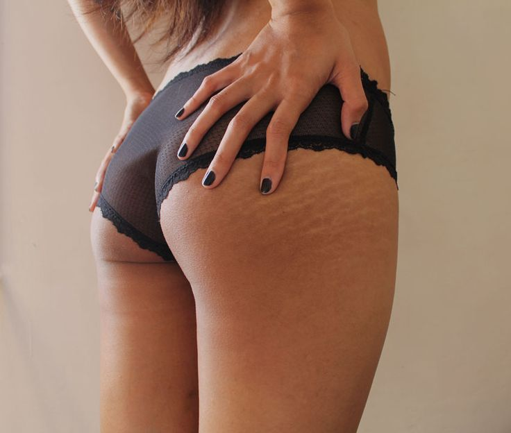 Stretch marks on the butt