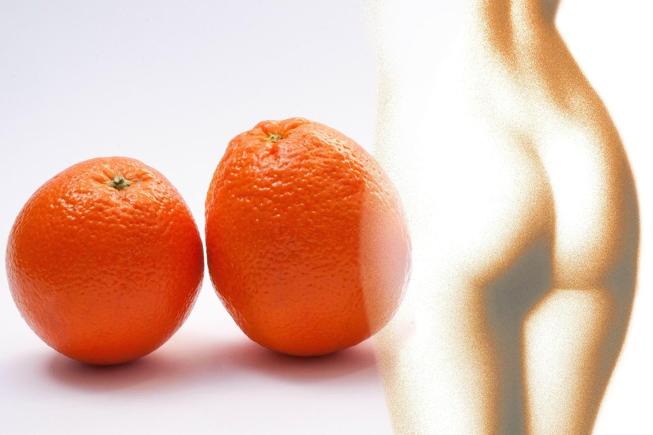 Orange peel - cellulite