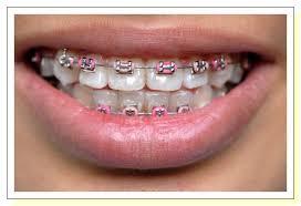 طرق حديثه لتقويم الاسنان