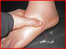 نصائح لتجنب حدوث تورم القدمين
