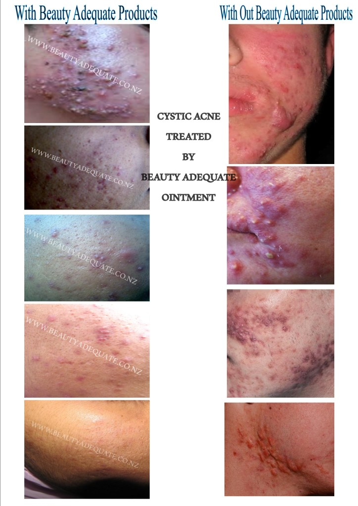 1. Cystic Acne, Sebaceous Cyst,Eczema, Ganglion Cyst, Pilonidal Cyst, Hemorrhoid, Bed Sores,Organic, natural, best treatment, acne, cystic acne,pilonidal cyst,scars,discolouration,no chemicals,acne vulgaris,essential oils. Dermatitis, pimples, acne rosacea, fibrous cyst, acne treatment, athlete foot, Wart, Burns, Wounds, Nappy Rash, Sunburn, Pigmentation, Cold Sores,Fever Blister, Anal Fissure, Aphthous Stomatitis, canker sore, Paronychia,Scrotal Cyst, Scrotum Cyst,Boils, Wart, intertrigo, Athlete's Foot,pilar cysts,CYSTIC ACNE Treated With Beauty Adequate Ointment