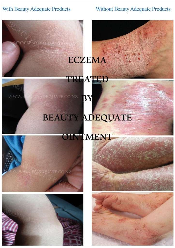 Eczema Treated by using Beauty Adequate Ointment.1. Cystic Acne, Sebaceous Cyst,Eczema, Ganglion Cyst, Pilonidal Cyst, Hemorrhoid, Bed Sores,Organic, natural, best treatment, acne, cystic acne,pilonidal cyst,scars,discolouration,no chemicals,acne vulgaris,essential oils. Dermatitis, pimples, acne rosacea, fibrous cyst, acne treatment, athlete foot, Wart, Burns, Wounds, Nappy Rash, Sunburn, Pigmentation, Cold Sores,Fever Blister, Anal Fissure, Aphthous Stomatitis, canker sore, Paronychia,Scrotal Cyst, Scrotum Cyst,Boils, Wart, intertrigo, Athlete's Foot,pilar cysts