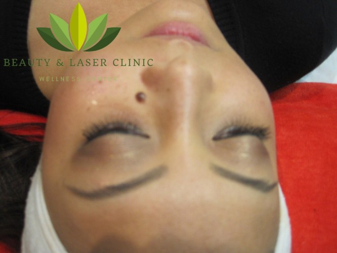 mole removal | Beauty and laser clinic before