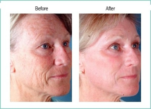 Fractional CO2 Laser Fraxel at Beauty and Laser Clinic MANLY