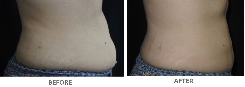 Fat freezing beauty and laser clinic manly body sliming