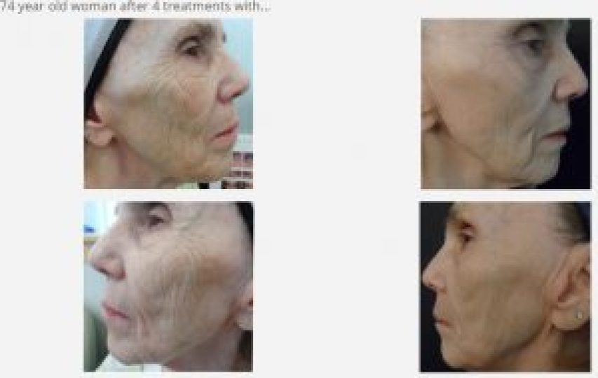 Microneedling Collagen Induction Therapy beauty and laser clinic manly