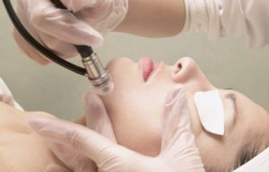 dark spot removal | Beauty and laser Clinic