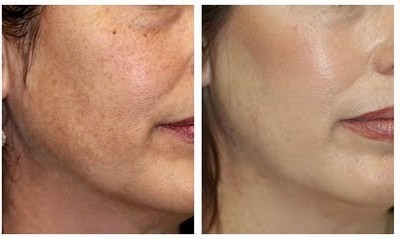 Beauty and Laser clinic skin resurfacing acne removal