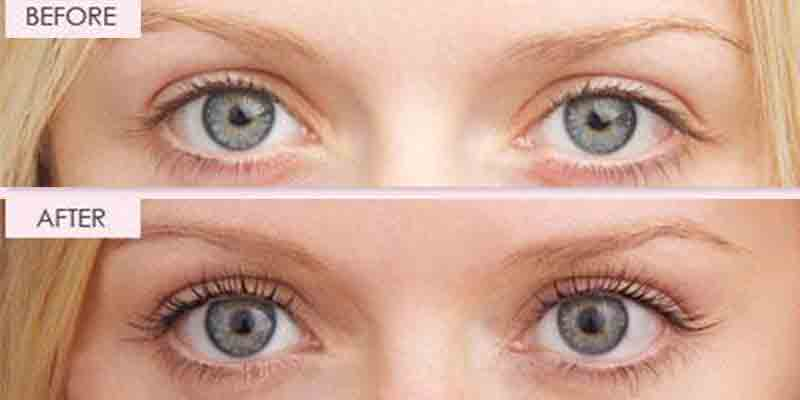 eyelash tinting manly   Beauty and Laser Clinic