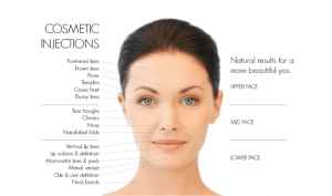 Cosmetic injections | Beauty and laser clinic - manly