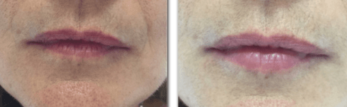 anti wrinkle injection - dermal fillers - beauty and laser clinic MANLY