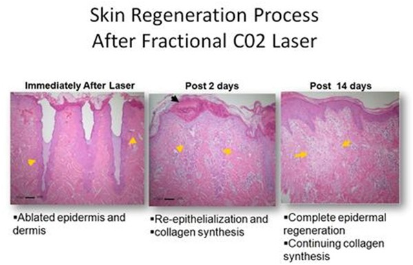 Beauty and Laser Clinic Co2 fraxel laser fractional