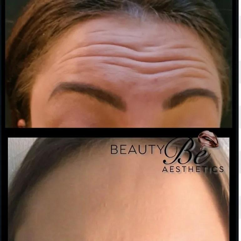 3 area Botox injections