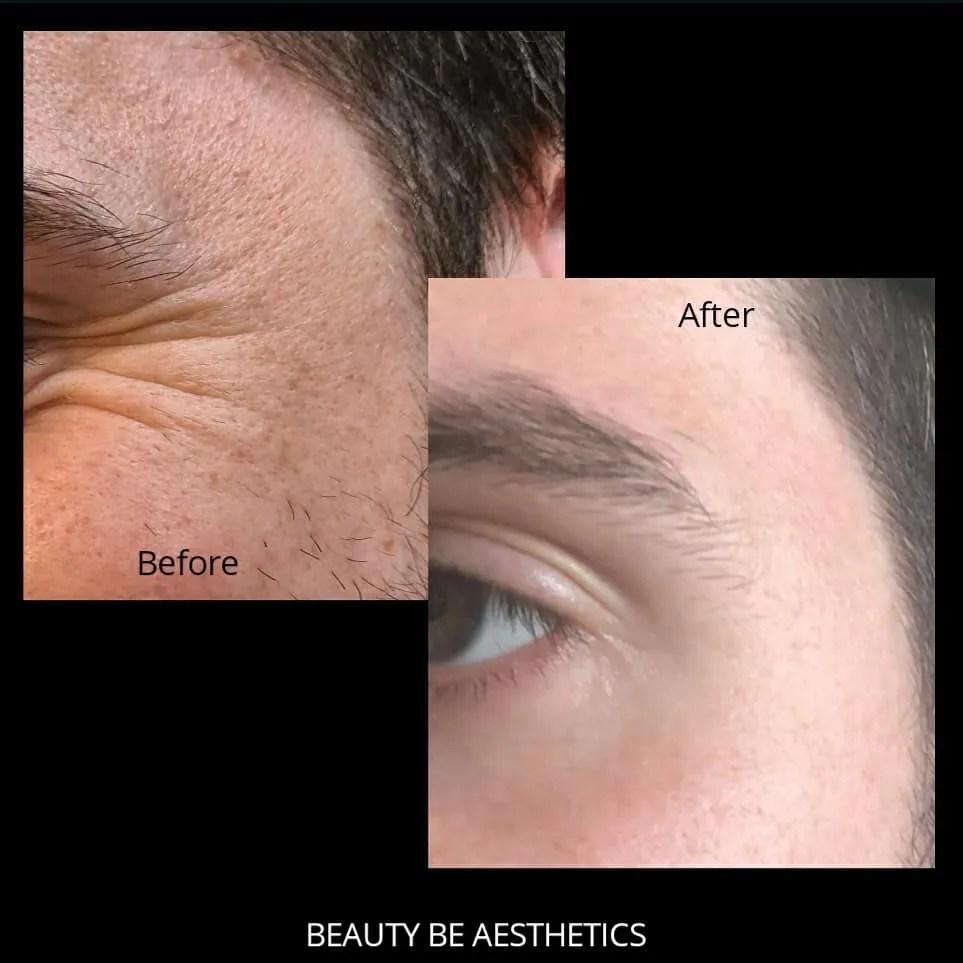 Botox skin care
