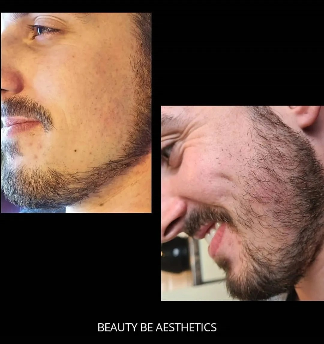 Microneedling for beard growth