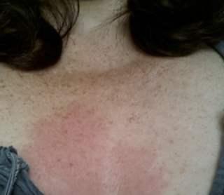 huid verbrand na mosterd compres