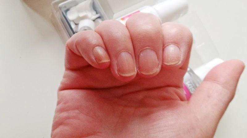 lelijke nagels