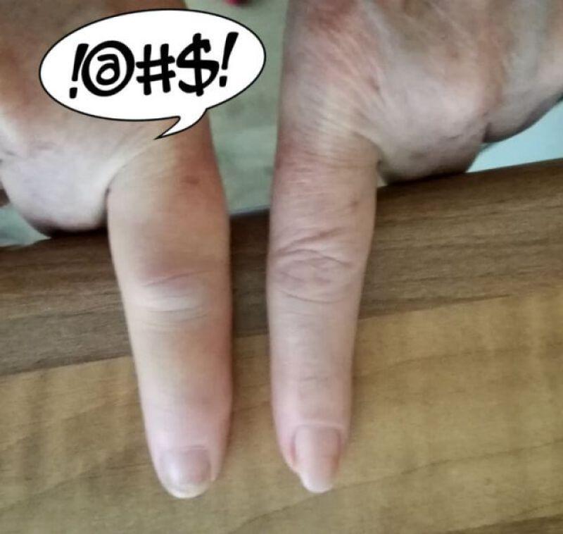 pijnlijke opgezette vinger