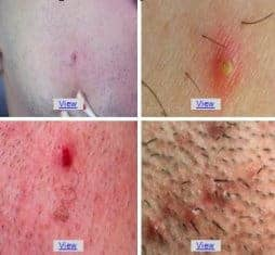 ingrown hair prevention and treatment causes symptoms removal on face head pubic arms