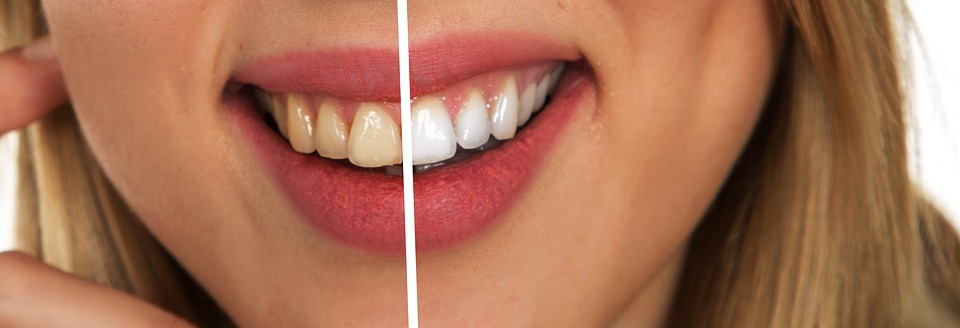 How to Safely Whiten Teeth at Home Whitening Teeth