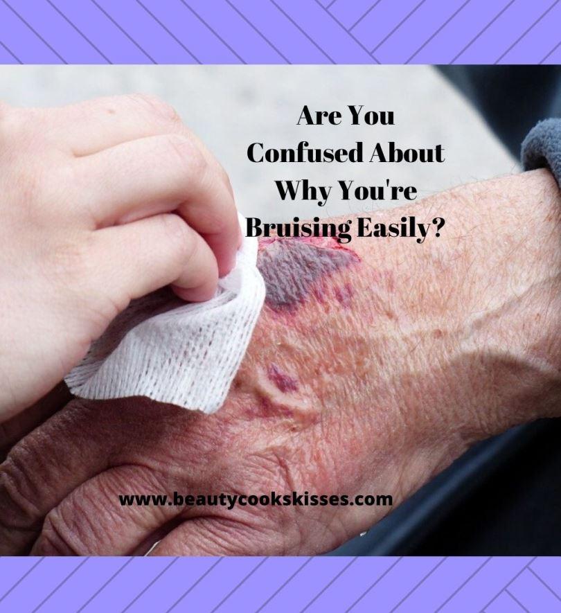 Bruising Easily Bruise