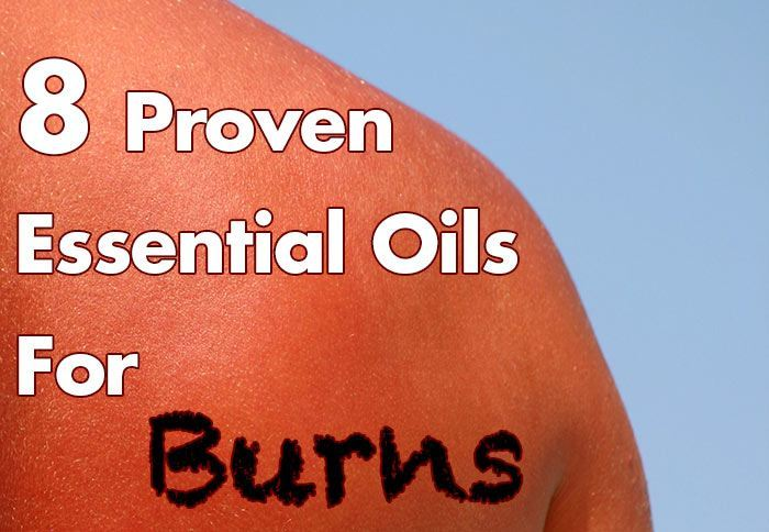 8-Proven-Essential-Oils-For-Burns