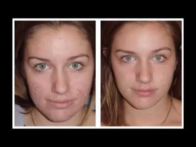 Coconut oil for acne before and after pictures 1
