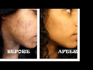 baking soda acne before and after picture 1