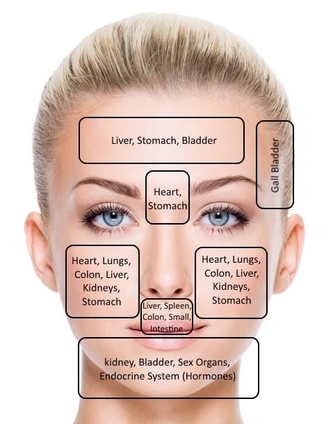 acne face mapping courtesy of facingacne