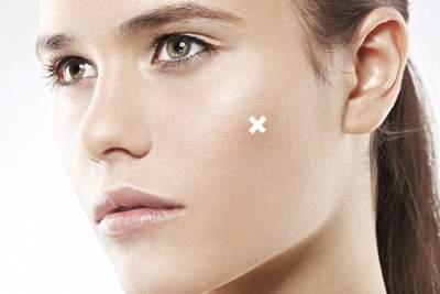 manuka oil for acne spot treatment