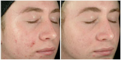 Benzoyl Peroxide for Acne Before and After Photos 3