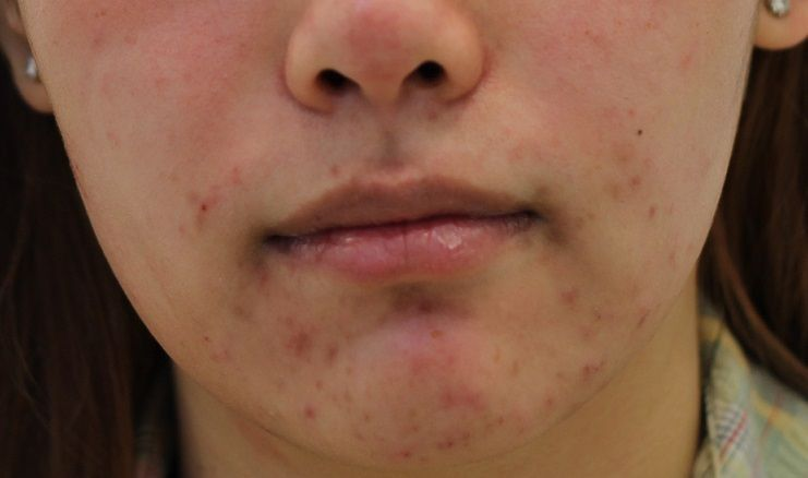 how to get rid of those painful red acne