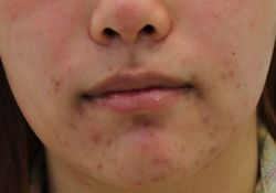 acne around mouth and chin